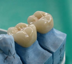 dental-crowns-tijuana
