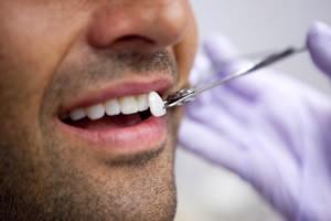 dental-veneers